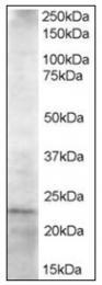 AP23819PU-N - HIP2 / UBE2K