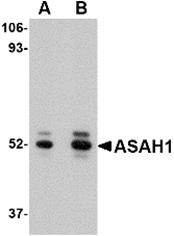 AP26322PU-N - Acid ceramidase