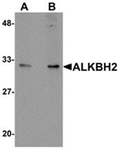 AP26246PU-N - ALKBH2 / ABH2