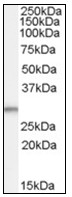 AP23830PU-N - Tumor protein D54 (TPD52L2)