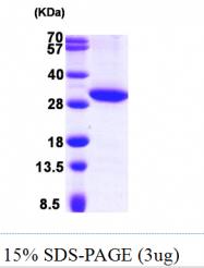 AR09788PU-L - 17-beta-HSD11 / HSD17B11