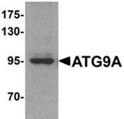 AP26284PU-N - APG9L1 / ATG9A