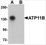 AP26239PU-N - ATP11B