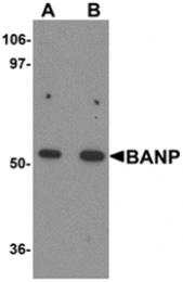 AP26271PU-N - BANP / SMAR1