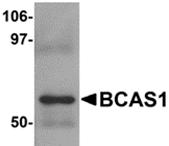 AP26200PU-N - BCAS1 / NABC1