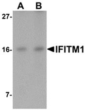 AP26231PU-N - CD225 / IFITM1