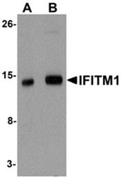 AP26232PU-N - CD225 / IFITM1