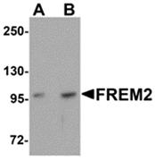 AP26225PU-N - FREM2