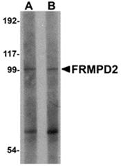 AP26197PU-N - FRMPD2