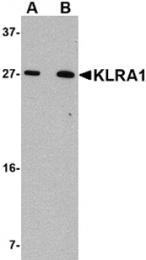 AP26323PU-N - KLRA1