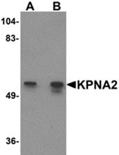 AP26275PU-N - KPNA2 / Importin alpha-2