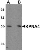 AP26274PU-N - KPNA4 / Importin alpha-4