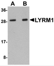 AP26201PU-N - LYRM1