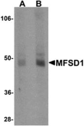 AP26289PU-N - MFSD1 / SMAP4
