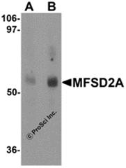 AP26290PU-N - MFSD2