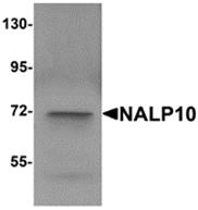 AP26266PU-N - NLRP10