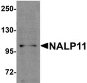 AP26267PU-N - NALP11