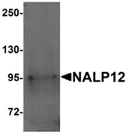AP26268PU-N - NALP12