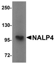 AP26261PU-N - NALP4