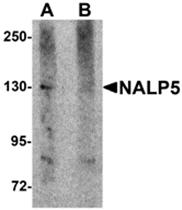 AP26262PU-N - NLRP5