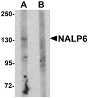 AP26263PU-N - NLRP6