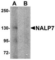 AP26264PU-N - NLRP7