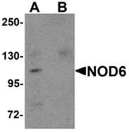 AP26260PU-N - NALP9 / NOD6