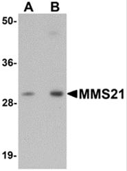 AP26209PU-N - NSMCE2