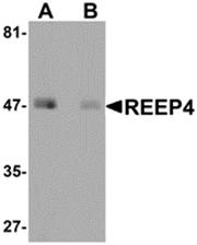 AP26198PU-N - REEP4