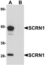 AP26235PU-N - Secernin-1 (SCRN1)
