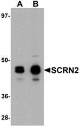 AP26236PU-N - Secernin-2 (SCRN2)