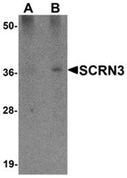 AP26237PU-N - Secernin-3 (SCRN3)