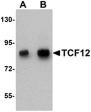 AP26280PU-N - TCF12