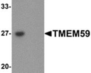 AP26305PU-N - TMEM59