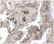 AP26193PU-N - Transthyretin / Prealbumin