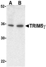 AP26175PU-N - TRIM5 / RNF88