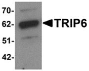AP26281PU-N - TRIP6 / OIP1