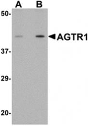 AP26196PU-N - Type-1 angiotensin II receptor (AT1)