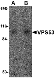 AP26189PU-N - VPS53