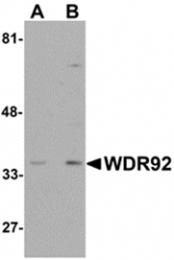 AP26253PU-N - WDR92 / Monad