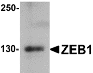 AP26222PU-N - ZEB1