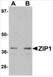 AP26306PU-N - Zinc transporter ZIP1 / SLC39A1