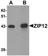 AP26315PU-N - Zinc transporter ZIP12 / SLC39A12