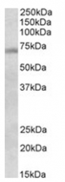 AP31104PU-N - DBF4 / ASK