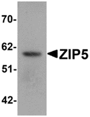 AP26310PU-N - Zinc transporter ZIP5 / SLC39A5