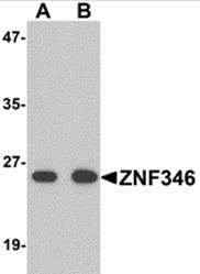 AP26282PU-N - ZNF346