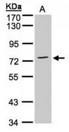 AP31120PU-N - Annexin A6 / ANXA6