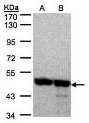 AP31121PU-N - Annexin A7 / ANXA7