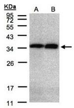 AP31122PU-N - Annexin A5 / ANXA5