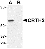 AP26180CP-N - CD294 / GPR44